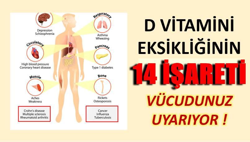 14 İşaretle Vücudunuz D Vitamini Eksikliğini Belli Ediyor !