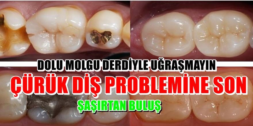 Çürük dişleri tedavi eden hap bulundu! Tıbbın yeni keşfi