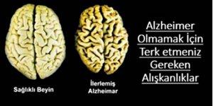 Gelecekte Alzheimer Hastası Olmak İstemiyorsanız dikkat