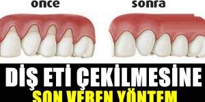 Diş eti çekilmesi nedir, neden olur? iŞTE önleyen öneri